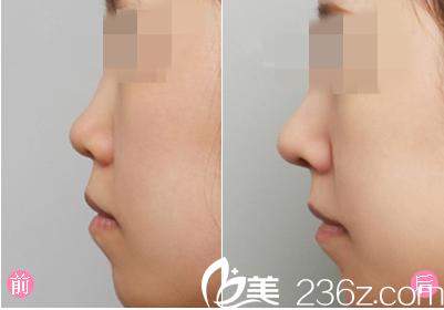 膨体隆鼻手术前后对比图