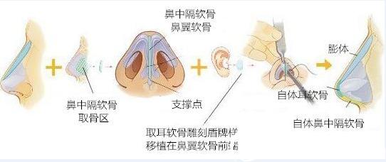 鼻综合整形原理