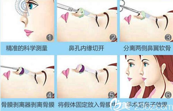 膨体隆鼻手术原理