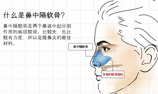 鼻中隔软骨取出位置