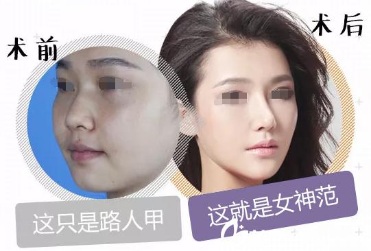 鼻中隔软骨隆鼻案例