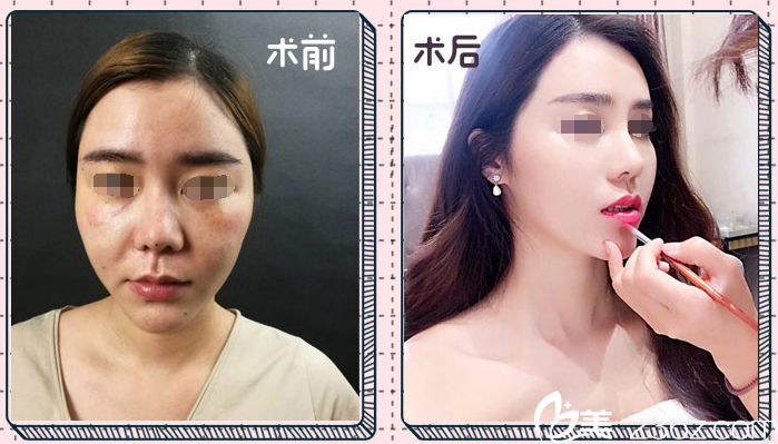 耳软骨塑造鼻尖整形案例