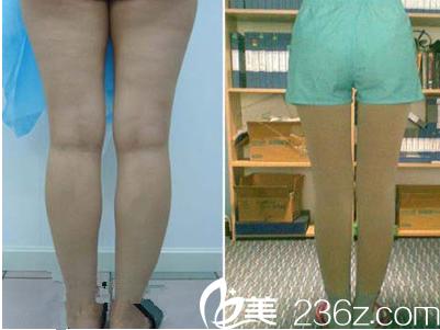 超龙吸脂瘦腿真人案例