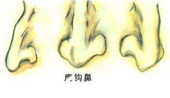 鹰钩鼻的形状