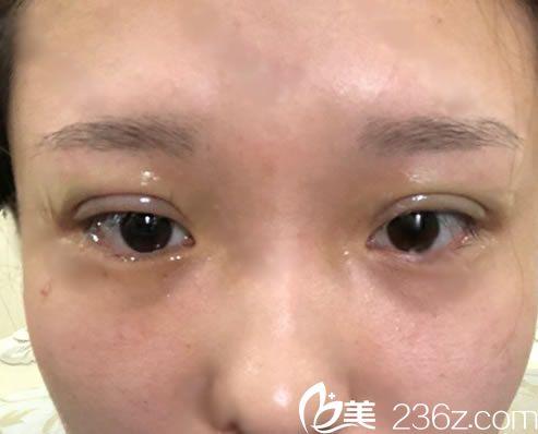 刚做完埋线双眼皮手术的图片
