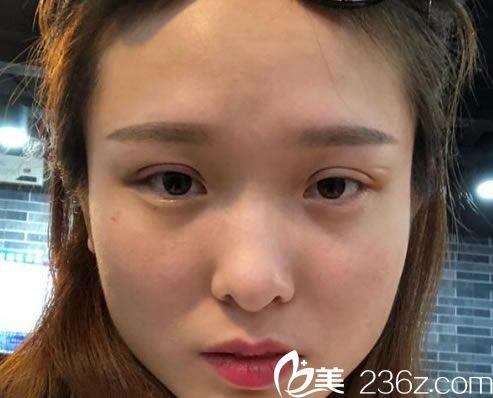 埋线双眼皮手术3天恢复效果图