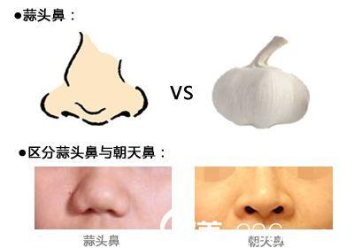 蒜头鼻和朝天鼻的区别