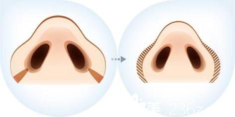 鼻翼缩小术矫正蒜头鼻