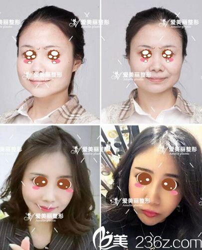 郑州爱美丽面部线雕提升案例