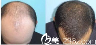 北京壹加壹郝文义自体毛发移植案例
