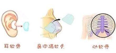 自体软骨隆鼻常用的三个软骨