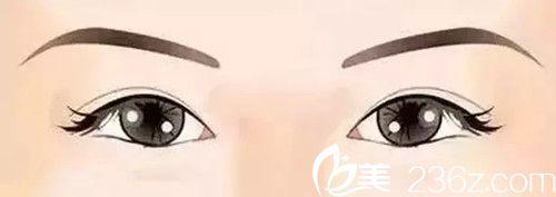两眼间距过宽