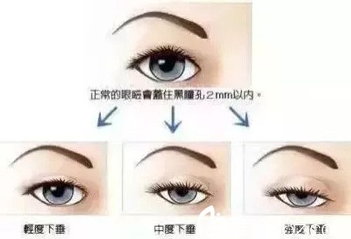 下垂状眼型