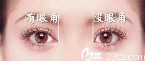改善双眼皮