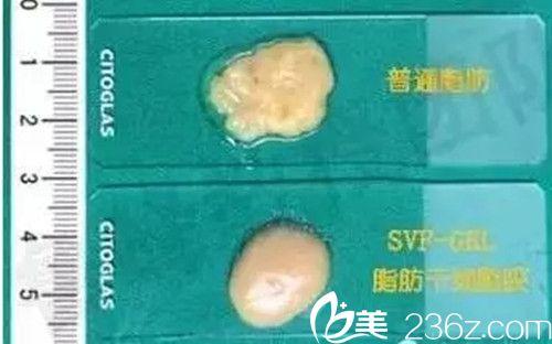 普通脂肪VS脂肪胶质地对比