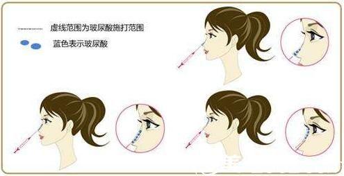 上海美莱欧阳春玻尿酸隆鼻