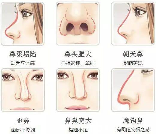 常见的鼻部缺陷问题示意图