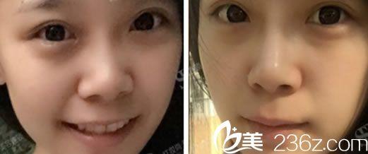 注射玻尿酸隆鼻手术案例