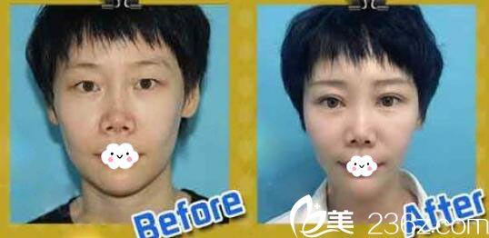 天津薇什医疗美容门诊部割双眼皮真人案例
