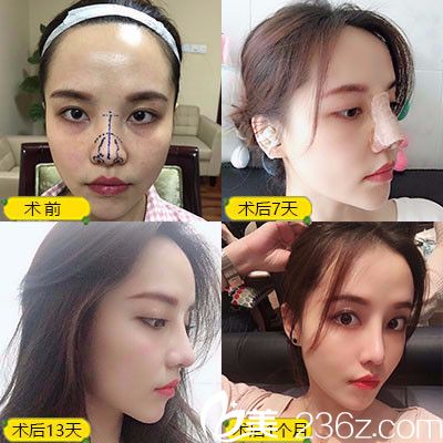 深圳蒳美迩朱灿做的耳软骨隆鼻子案例图