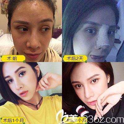 深圳蒳美迩朱灿做的隆鼻失败修复案例