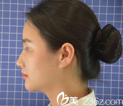 南京艺星整形美容医院赵海波术前照片1