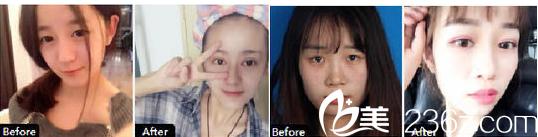 国庆活动中!西安韩媚美容诊所切开双眼皮只需¥2800