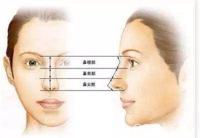 取出隆鼻假体后,鼻子还能恢复原样吗?