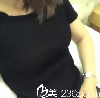 北京京韩王沛森抽吸脂技术怎么样?参考我腰腹部吸脂效果和价格
