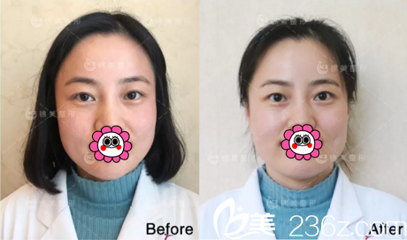 """分享我在锦州医疗美容医院做""""初体验""""感受 土味少女也能化身斩男萌妹"""