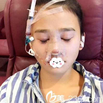 耳软骨+假体综合隆鼻术后