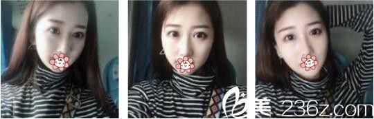 韩国AURORA整形外科医院李志永鼻综合真人案例术后一个月