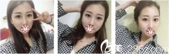韩国AURORA整形外科医院李志永鼻综合真人案例术后两个月