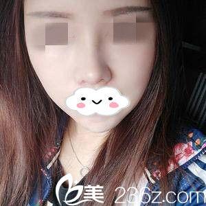 鼻修复术后半个月