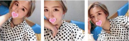 韩国奥拉克皮肤科整外科李正馥面部提升真人案例术后一个月