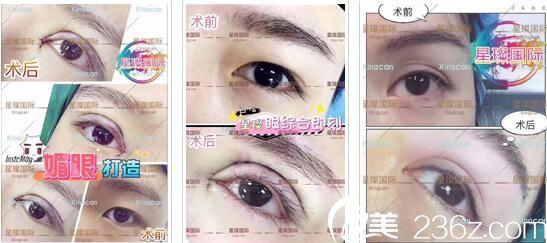 上海星璨国际整形医院眼部整形真人案例