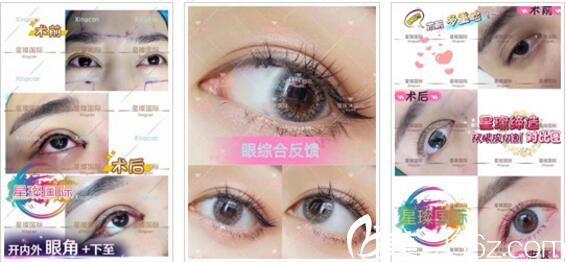 上海星璨国际整形医院眼部整形真人案例2
