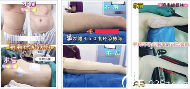 上海星璨国际整形医院抽脂塑形真人案例3