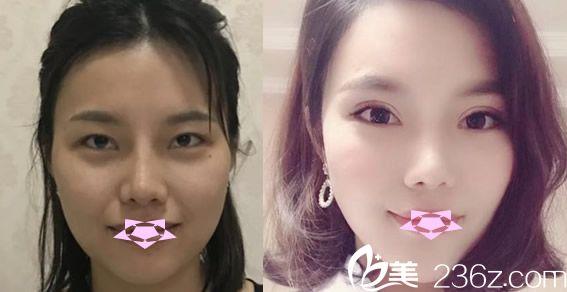 合肥壹美尚叶冠青双眼皮失败修复案例