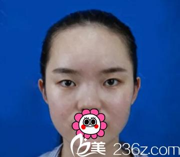 长沙爱思特医疗美容医院吴蒙术前照片1