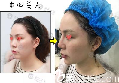重庆华美玻尿酸注射隆鼻效果怎么样