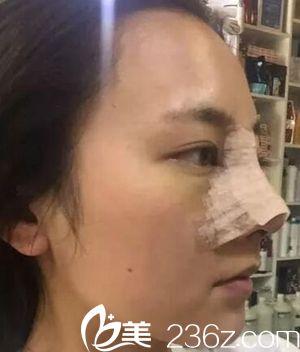驻马店美兰德做鼻综合手术当天