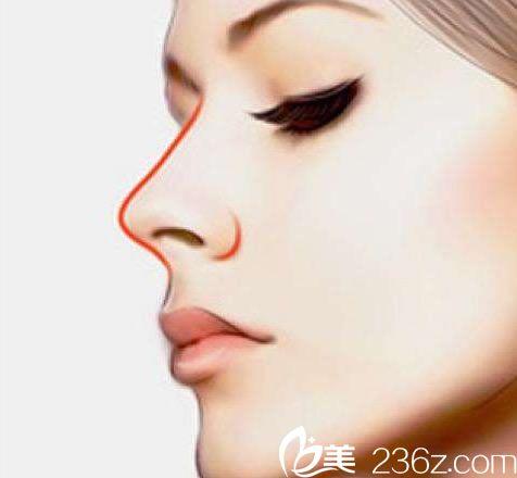 杭州做假体隆鼻医生及手术价格