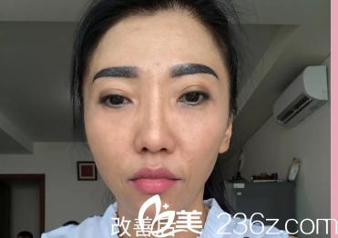 今天是我在济南做去眼袋+的术后第90天,结果就是现在这个样子