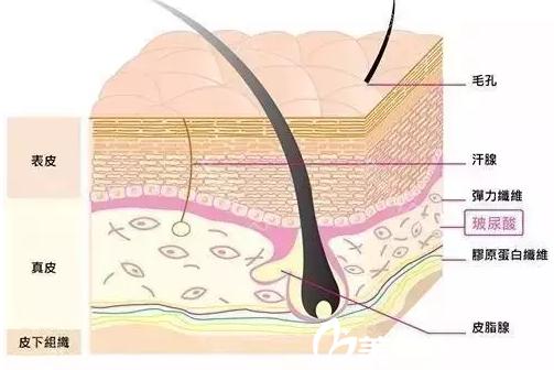 玻尿酸注射在皮肤的位置