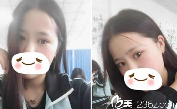太原时光整形美容医院李晨霞术后照片1