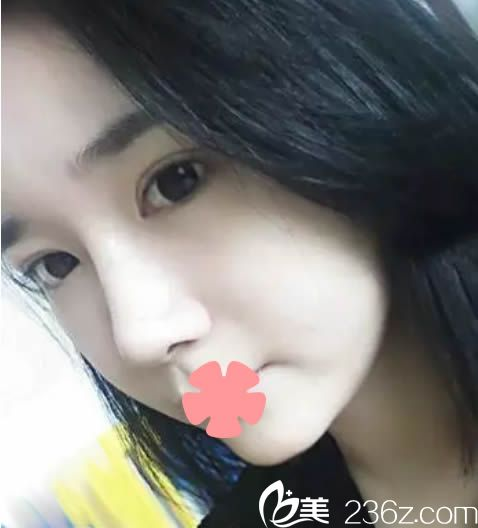 福州海西迪娅郭志辉整形案例 90后姑娘的鼻综合隆鼻和7.5mm双眼皮半年后效果图爆出