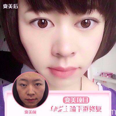 上海百达丽整形医院王维做的双眼皮修复案例图