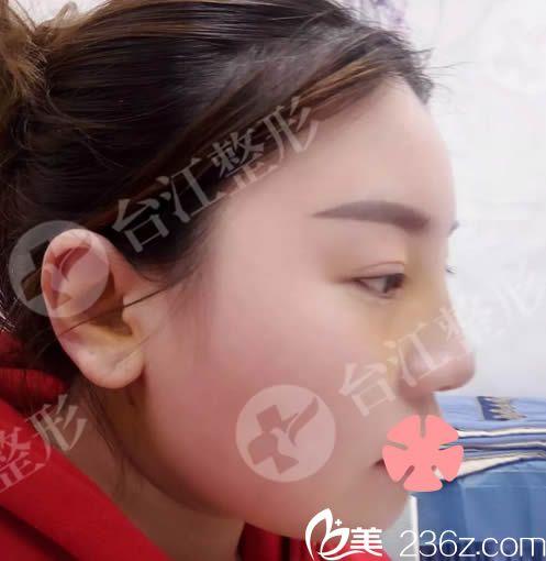 我去福州台江整形做了假体+耳软骨隆鼻 今天来晒我做完鼻综合术后1-7天的照片