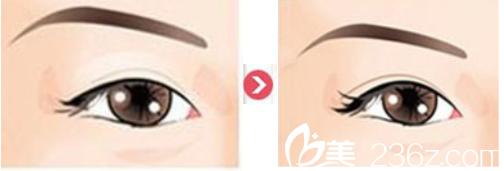 双眼皮术前术后效果